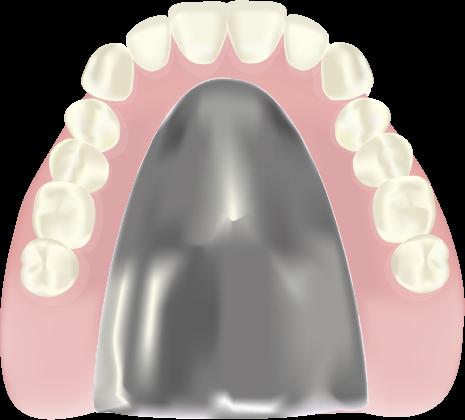 チタン床義歯